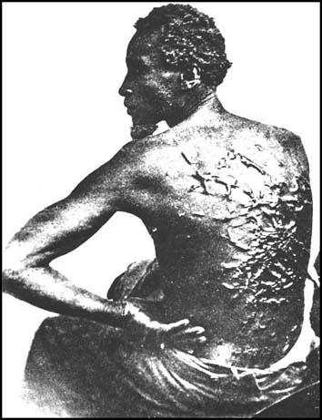 A whipped slave in the 1860s.