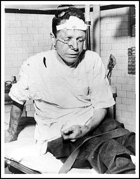 James Peck after being beaten at Anniston.